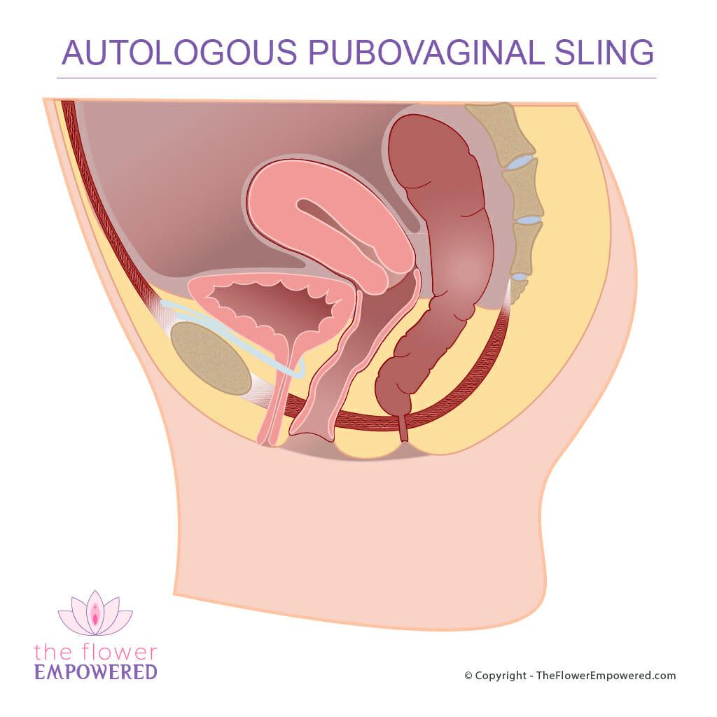 Autologous Pubovaginal Sling