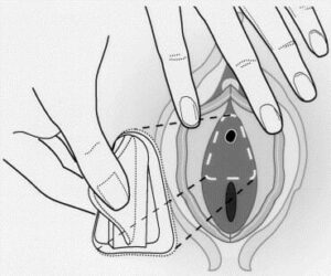 Urethral blocking devices