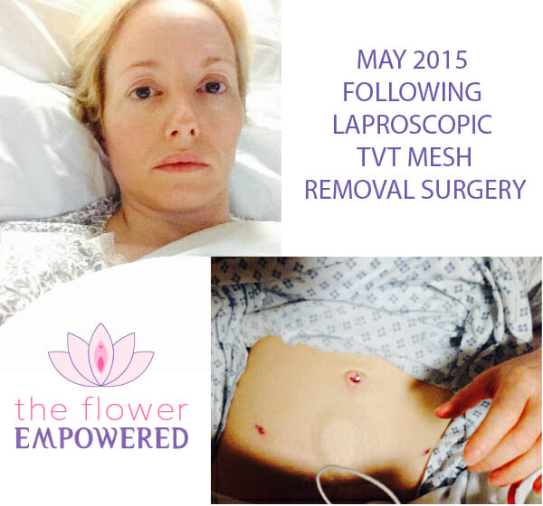 Denise following mesh removal May 2015